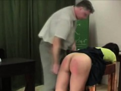 Red Ass Severe Whooping