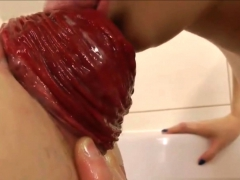 Anal Prolapse Compilation Watch More On Orgasmcamsgirl Com